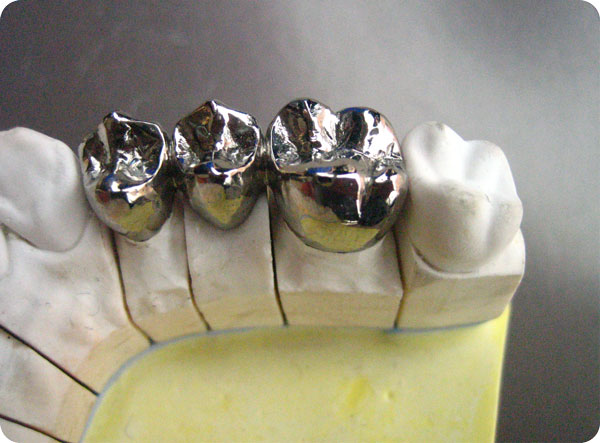 Dental-Full-Titanium-Metal-Crown